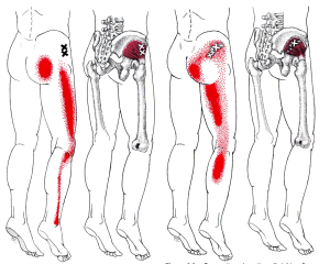 Referral patterns of Gluteus Minimus.  A lot like sciatic pain!