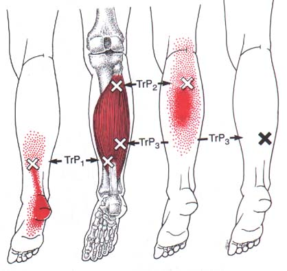 "The ""x"" marks trigger points and red areas are where the referred pain is felt in active trigger points in the soleus muscle."